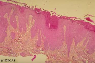 Elementary lesions : Lichenification